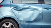 dented-car
